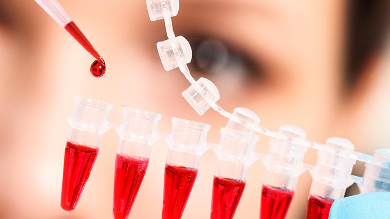 건강검진의-기본,-혈액검사로-알-수-있는-질병은
